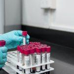 Ten reports of possible thrombosis after AstraZeneca #coronavirus vaccine in the Netherlands